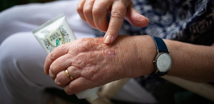 Jak pielęgnować przesuszoną skórę dłoni?